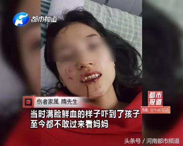 长寿山景区游客被冲撞受伤,景区不救人先摆拍?工作人员态度更气愤