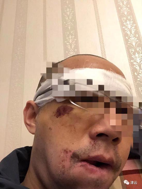 男子称被滴滴司机殴打眉骨缝十几针 滴滴这样回复